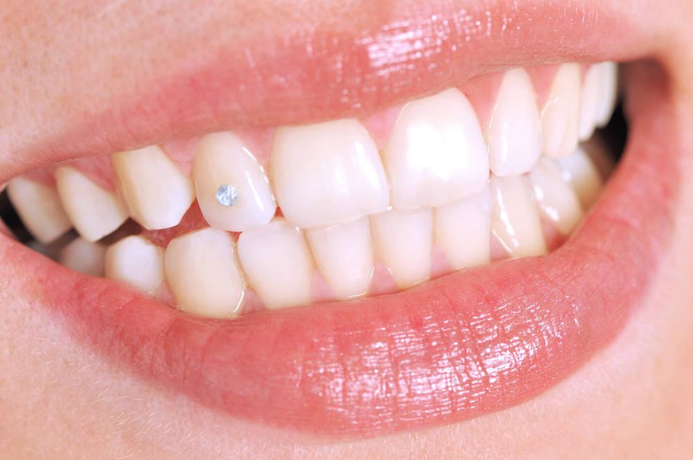 Las modas dentales, cada vez más locas