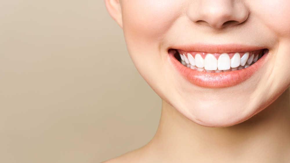 Sonrisa gingival: causas y tratamientos